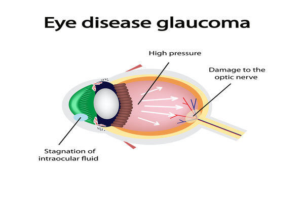 eye diseases glaucoma