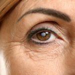 Cataract Lens